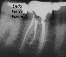 Curved Canals, Extremely curved root canals (90 degrees +), Root Canal Treatment Post-Therapy 124746-2