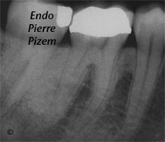 Curved Canals, Canal Curvature with an 'S' form, Root Canal Treatment Pre-Therapy 448446-1