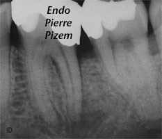 Curved Canals, Canal Curvature with an 'S' form, Root Canal Treatment Pre-Therapy 448936-1