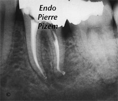 Curved Canals, Canal Curvature with an 'S' form, Root Canal Treatment Post-Therapy 448936-1