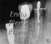 Curved Canals, Extremely curved root canals (90 degrees +), Root Canal Treatment Post-Therapy 44-1