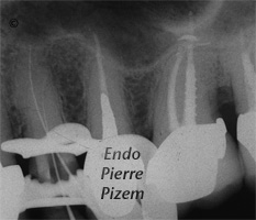 Dental operating microscope (D.O.M.), D.O.M. versus completely calcified systems, Root Canal Treatment Per-Therapy 91724-1