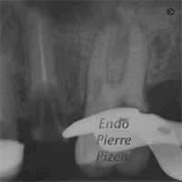 Dental Operative Microscope and Retreatment, Dealing with Broken Instruments Removal, Root Canal Treatment Post-Therapy 264266-1