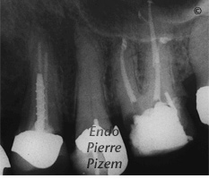 Dental operating microscope (D.O.M.), D.O.M. versus completely calcified systems, Root Canal Treatment Per-Therapy 471726-2