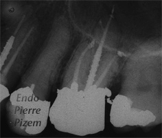 Dental operating microscope (D.O.M.), D.O.M. versus completely calcified systems, Root Canal Treatment Post-Therapy 471726-1