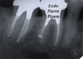 Dental operating microscope (D.O.M.), Pulp Stones (Denticles), Root Canal Treatment Post-Therapy 449947-1