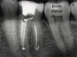 Dental operating microscope (D.O.M.), D.O.M. versus completely calcified systems, Root Canal Treatment Post-Therapy 483136-1