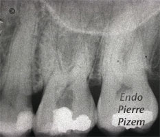 Atypical Canal Configurations, Very Long Teeth, Root Canal Treatment Pre-Therapy 486726-1