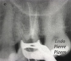 Atypical Canal Configurations, Very Long Teeth, Root Canal Treatment Per-Therapy 486726-1