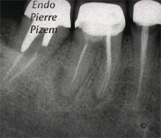 Atypical Canal Configurations, Type II, Root Canal Treatment Pre-Therapy 485946-1