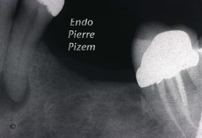 Dental operating microscope (D.O.M.), D.O.M. versus partially calcified systems, Root Canal Treatment Pre-Therapy 419034-1