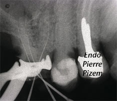 Dental operating microscope (D.O.M.), D.O.M. versus completely calcified systems, Root Canal Treatment Per-Therapy 465016-1