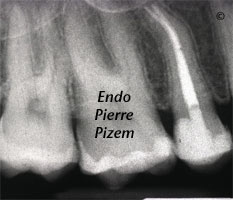 Atypical Canal Configurations, Type V, Root Canal Treatment Post-Therapy 473515-1