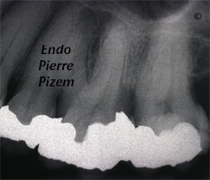 Curved Canals, Canal Curvature with an 'S' form, Root Canal Treatment Pre-Therapy 63727-1