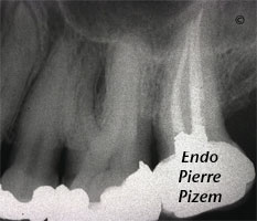 Curved Canals, Canal Curvature with an 'S' form, Root Canal Treatment Post-Therapy 63727-1