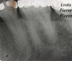 Atypical canal configurations, Radix Entomolaris, Root Canal Treatment Pre-Therapy 186336-1