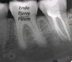 Atypical Canal Configurations, Type V, Root Canal Treatment Pre-Therapy 397137-1