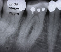 Extreme Endo Clinical Cases, Root Canal Treatment Pre-Therapy 417847-1