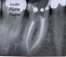 Extreme Endo Clinical Cases, Root Canal Treatment Per-Therapy 417847-2