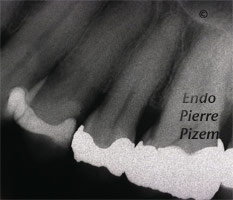 Curved Canals, Extremely Curved Root Canals, Root Canal Treatment Pre-Therapy 63724-1