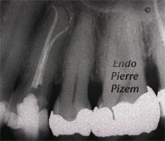 Curved Canals, Extremely Curved Root Canals, Root Canal Treatment Post-Therapy 63724-1