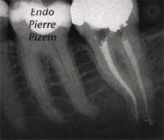 Curved Canals, Canal Curvature with an 'S' form, Root Canal Treatment Post-Therapy 6937-1
