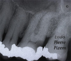 Curved Canals, Extremely Curved Root Canals, Root Canal Treatment Pre-Therapy 492626-1