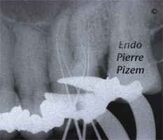 Curved Canals, Extremely Curved Root Canals, Root Canal Treatment Per-Therapy 492626-1