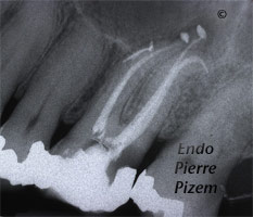 Curved Canals, Extremely Curved Root Canals, Root Canal Treatment Per-Therapy 492626-2