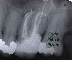 Curved Canals, Extremely Curved Root Canals, Root Canal Treatment Post-Therapy 492626-1