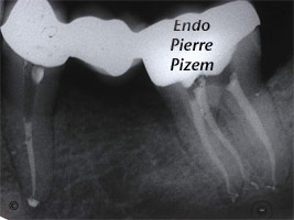 Curved Canals, Canal Curvature with an 'S' form, Root Canal Treatment Post-Therapy 497935-1