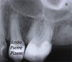 Dental operating microscope (D.O.M.), D.O.M. versus completely calcified systems, Root Canal Treatment Pre-Therapy 27526-1