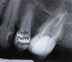 Dental operating microscope (D.O.M.), D.O.M. versus completely calcified systems, Root Canal Treatment Per-Therapy 27526-2