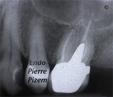 Dental operating microscope (D.O.M.), D.O.M. versus completely calcified systems, Root Canal Treatment Post-Therapy 27526-1