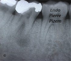 Atypical canal configurations, Radix Entomolaris, Root Canal Treatment Pre-Therapy 493847-1