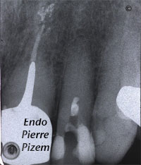 Dental operating microscope (D.O.M.), D.O.M. versus completely calcified systems, Root Canal Treatment Per-Therapy 73422-1
