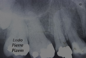 Atypical Canal Configurations, Type V, Root Canal Treatment Pre-Therapy 362515-1