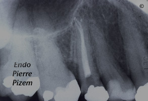 Atypical Canal Configurations, Type V, Root Canal Treatment Post-Therapy 362515-1