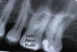 Curved Canals, Canal Curvature with an 'S' form, Root Canal Treatment Pre-Therapy 449927-1