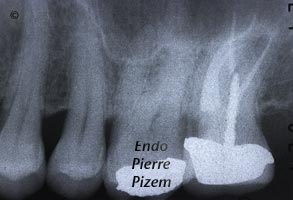 Curved Canals, Canal Curvature with an 'S' form, Root Canal Treatment Post-Therapy 449927-1