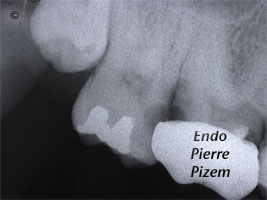 Curved Canals, Dilaceration, Root Canal Treatment Pre-Therapy 498216-1