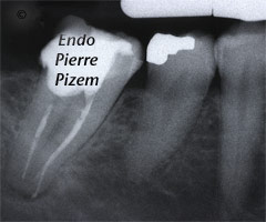 Curved Canals, Dilaceration, Root Canal Treatment Per-Therapy 498946-1