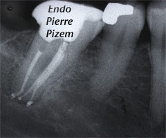 Curved Canals, Dilaceration, Root Canal Treatment Per-Therapy 498946-2