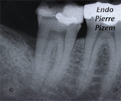 Curved Canals, Extremely Curved Root Canals, Root Canal Treatment Pre-Therapy 500047-1