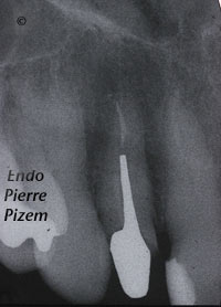 Dental operating microscope (D.O.M.), D.O.M. versus completely calcified systems, Root Canal Treatment Post-Therapy 501812-1