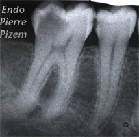 Atypical canal configurations, Radix Entomolaris, Root Canal Treatment Pre-Therapy 5051-1