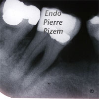 Extreme Endo Clinical Cases, Root Canal Treatment Pre-Therapy 53847-1