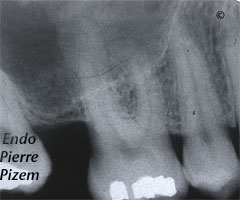 Atypical Canal Configurations, Very Long Teeth, Root Canal Treatment Pre-Therapy 171516-1