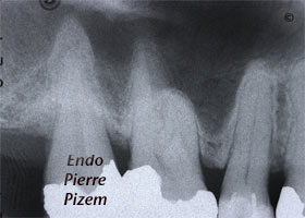 Atypical Canal Configurations, Type V, Root Canal Treatment Pre-Therapy 378415-1