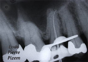 Atypical Canal Configurations, Type V, Root Canal Treatment Per-Therapy 378415-1